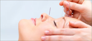 Acupuncture treatment on sinuses, via Fort Saskatchewan Acupuncture