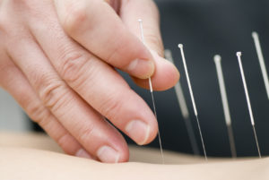 Acupuncturist applies needles, via Fort Saskatchewan Acupuncture.