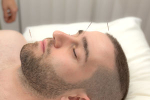 Acupuncture treatment is being applied in the forehead, via Fort Saskatchewan Acupuncture