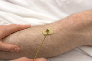Moxabustion heat therapy, via Fort Saskatchewan Acupuncture.