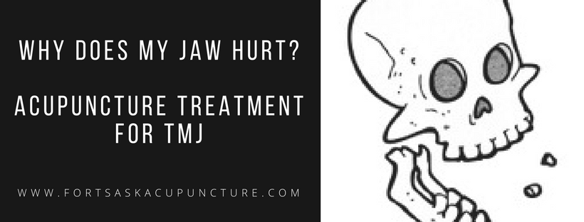 acupuncture-tmj
