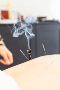 Moxibustion at Fort Sask Acupuncture